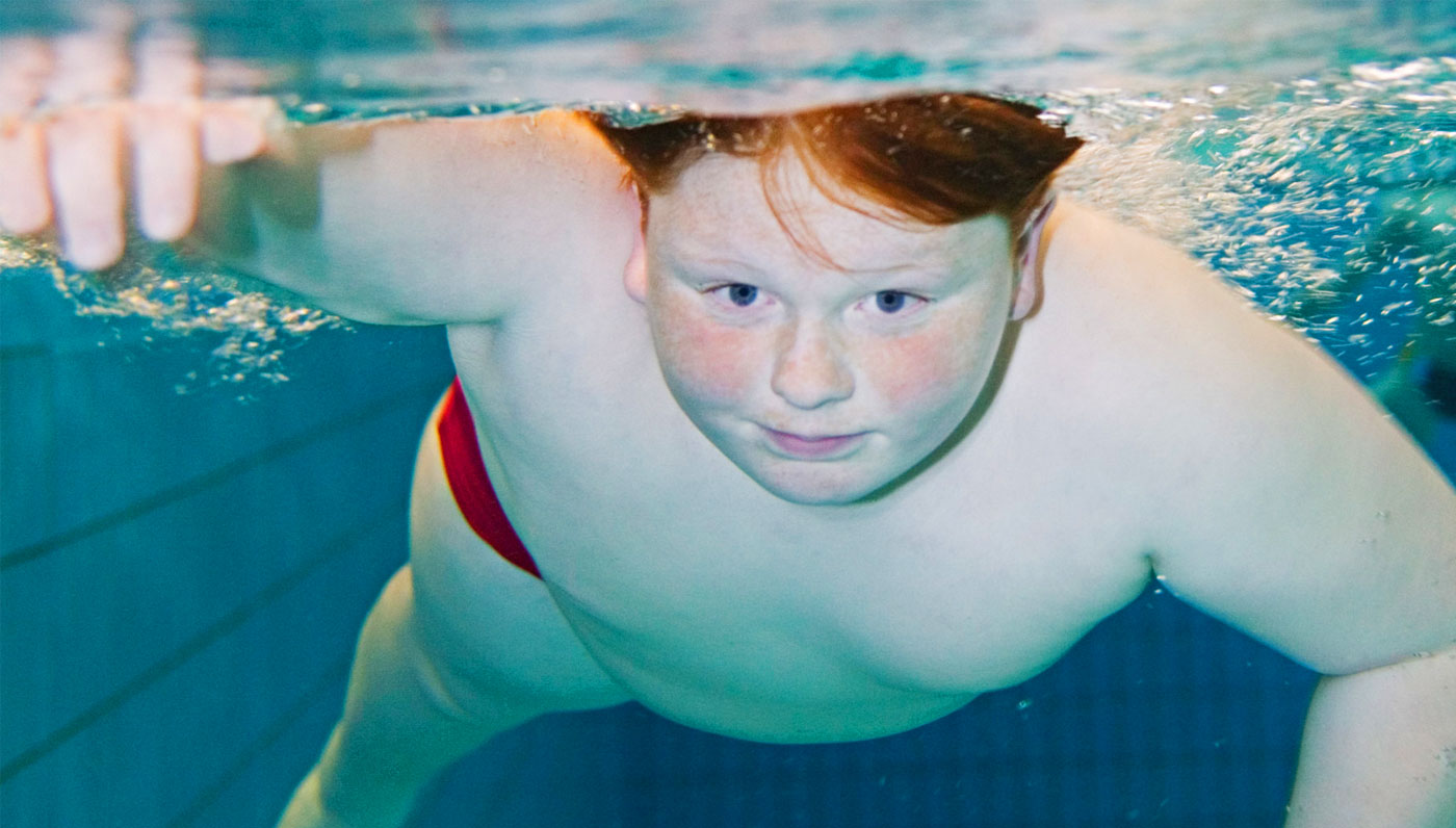 Aquatic Therapy - Applications in Obesity Rehabilitation by Bruce E. Becker, MD, MS